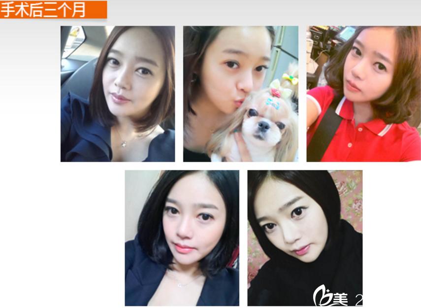 忧郁少女在韩国博朗温做面部轮廓+脂肪移植成为校园宣传模特
