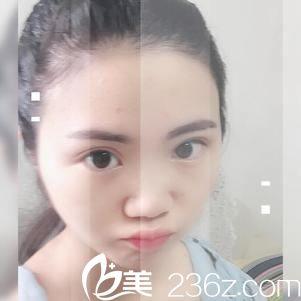 金华维多利亚割双眼皮好吗 看我在这里找陈焕武做眼睛138天蜕变过程