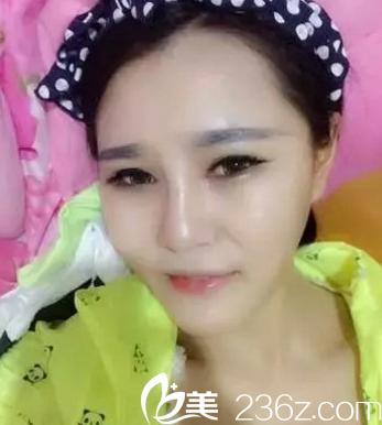 韩国opera整形医院金锡汉院长做假体垫下巴怎么样?多少钱?