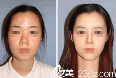 韩国RUBY如妃整形外科医院李宇容做鼻子好不好?自体脂肪隆鼻真人案例