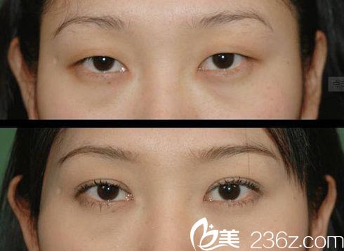 双眼皮方法哪种适合你?上海伊莱美整形医院邱文苑医生告诉你!