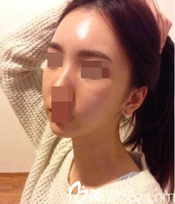 韩国Small Face整形外科张镐做面部轮廓效果好不好?颧骨和面部吸脂真人手术案例