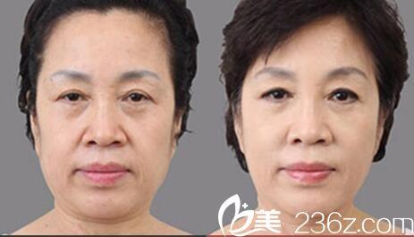韩国SHE'S整形外科医院金敬昊做美白肌肤效果好不好?美白肌肤真人案例