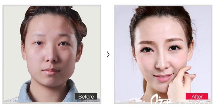 鼻整形=隆鼻?北京丽都整形医院吴玉家医生告诉你什么是鼻整形!