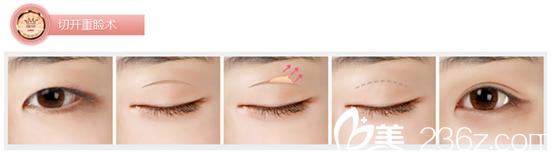 双眼皮怎么做自然无痕?找北京延世整形医院金奇龙院长就对了!