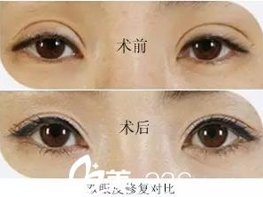 什么样的双眼皮需要修复?清潭第一双眼皮修复怎么样