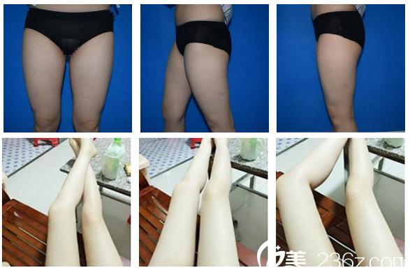 深圳仁安雅苗春来大腿吸脂案例