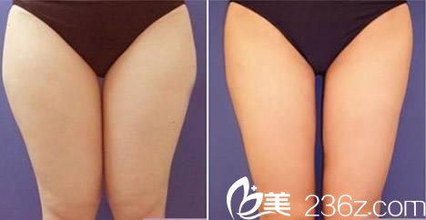 韩国wiz&美整形外科徐昇源吸脂手术效果好不好?激光溶脂真人案例