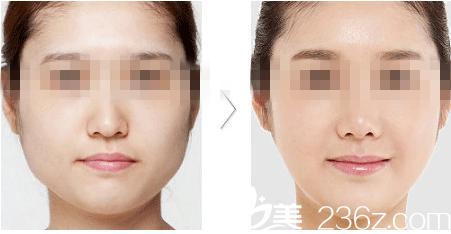 韩国高兰得李智英院长提醒求美者们肉毒素注射瘦脸需注意的问题