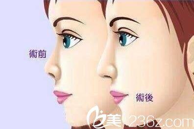 韩国格林整形医院自体脂肪隆鼻