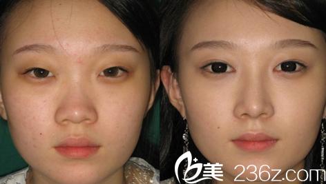 韩国cnm整形外科医院隆鼻和双眼皮怎么样?多少钱?