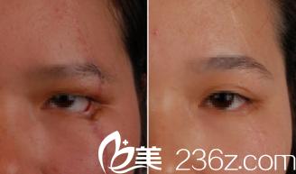 重庆骑士医院祛疤痕管用吗?真实案例对比图见证效果怎么样