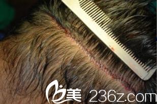 我花15000找韩国狎鸥亭延世医院金大溶做毛发移植再也不怕娶不到媳妇儿了!