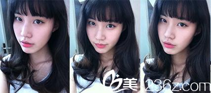 韩国狎鸥亭YK整形外科做面部轮廓怎们样?真人案例