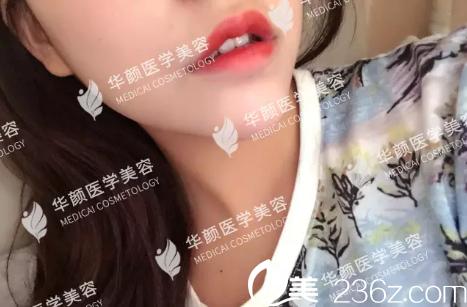 成都华颜刘来新水晶花瓣唇真人案例:伊婉玻尿酸丰唇前后对比照片