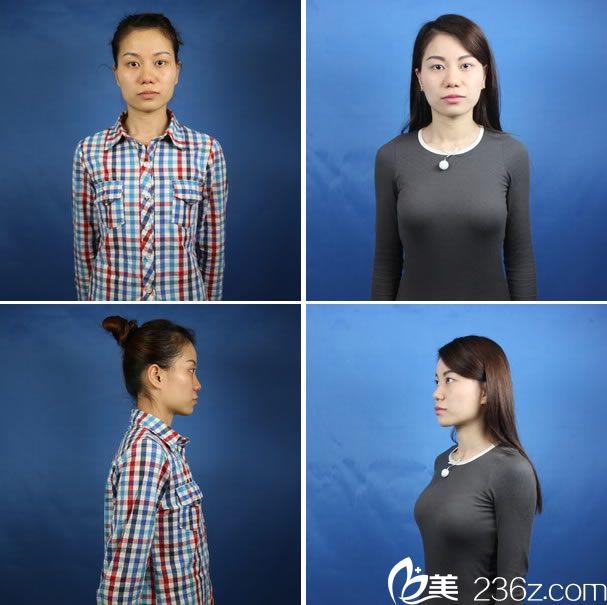 杭州新友好黄威隆胸真人案例