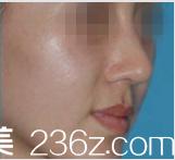 分享我在Beauty Line 4U整形做驼峰鼻一个月恢复照,朴成龙院长案例