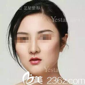 武汉艺星医疗美容门诊部朱胜军术后照片1