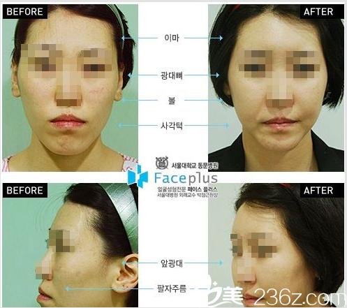 FacePlus整形外科医院案例