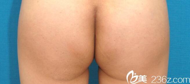 韩国美姿整形外科黄贵焕做臀部整形效果好不好?臀部整形真人案例