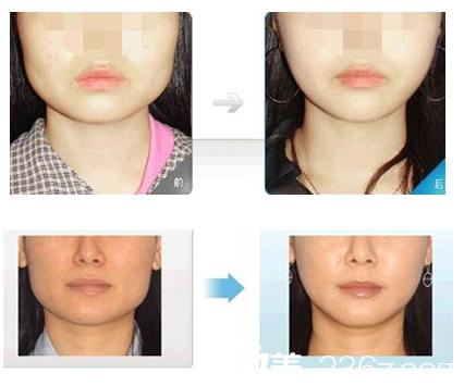 广州南珠整形柳大烈磨骨改脸型案例
