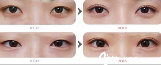 王焕双眼皮案例对比图