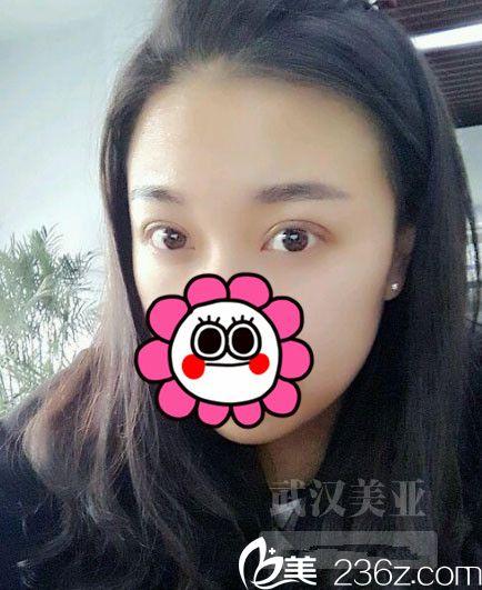 记录贴:武汉美亚整形5980元全切双眼皮1-10天恢复过程
