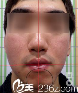 韩国美尔(miall)韩整形医院任龙奭院长做颜面部不对称手术怎么样?真人案例