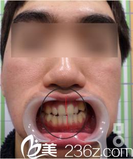 韩国美尔(miall)韩整形医院面部不对称矫正真人案例后牙齿变化