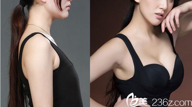 桂林华美赵丽红隆胸案例对比效果图