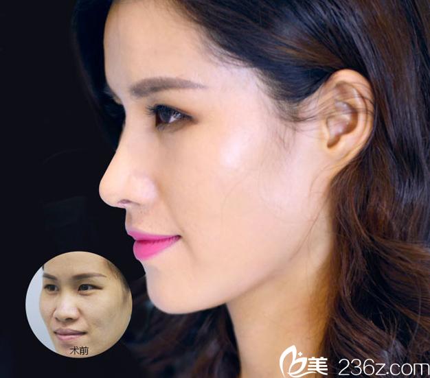 桂林华美胡凯隆鼻案例对比图