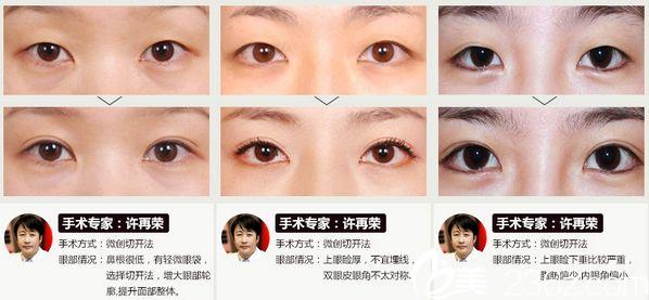 上海华美医疗美容许再荣眼部术后效果