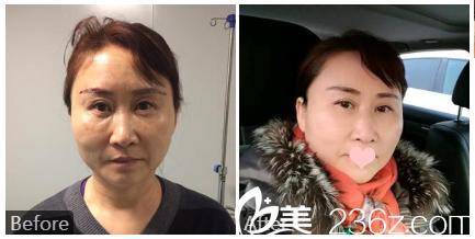 桂林华美医疗美容整形医院甘学文案例