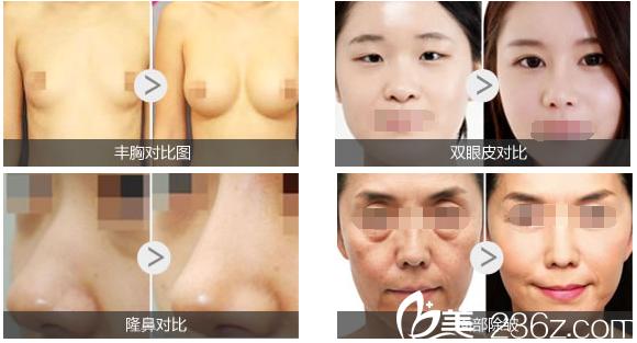 蚌埠东方美莱坞医疗美容医院部分塑美案例
