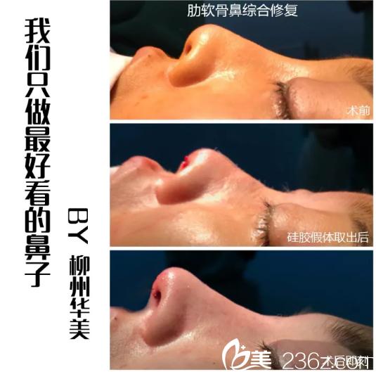 柳州华美隆鼻怎么样?王文院长肋软骨鼻综合修复案例过程大起底