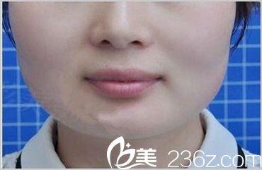 在郑州陇海做的光子嫩肤,不但能嫩肤还能祛斑!