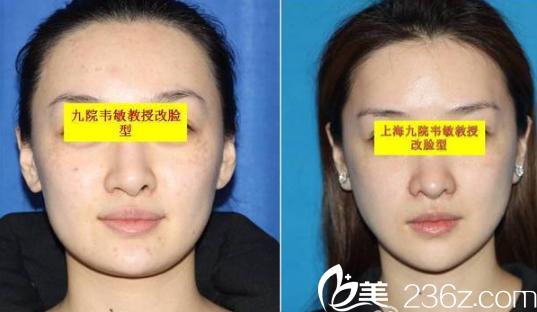 上海九院韦敏磨骨改脸型案例