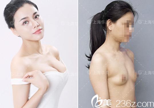 上海华美谢卫国隆胸案例