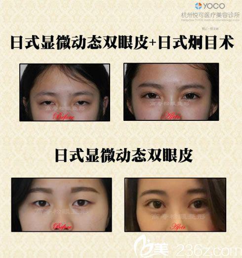 日式双眼皮真人案例效果图