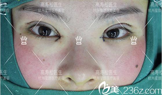 开眼角手术过程中