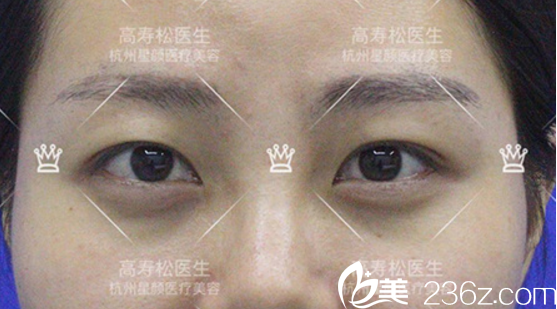 双眼皮+开眼角术前照片