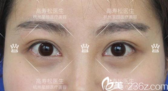 高寿松开眼角双眼皮真人案例