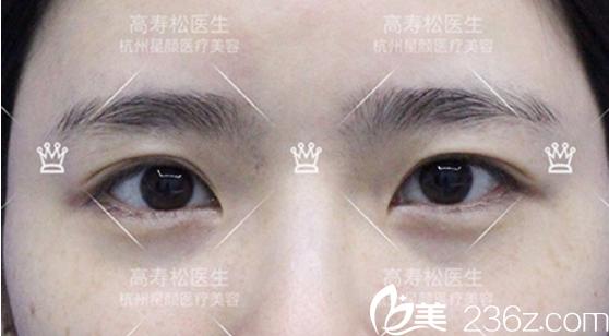 开眼角前的内双双眼皮照片