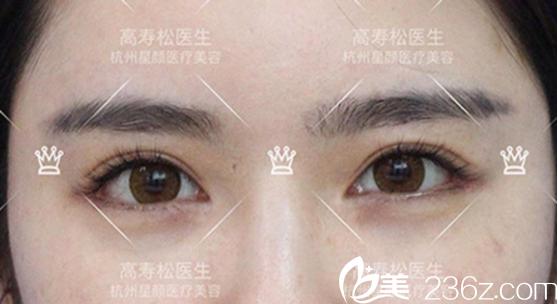 开眼角手术后的平行双眼皮照片
