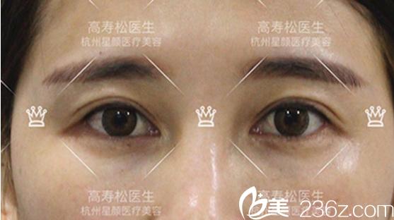 高寿松内眼角左右不对称矫正案例