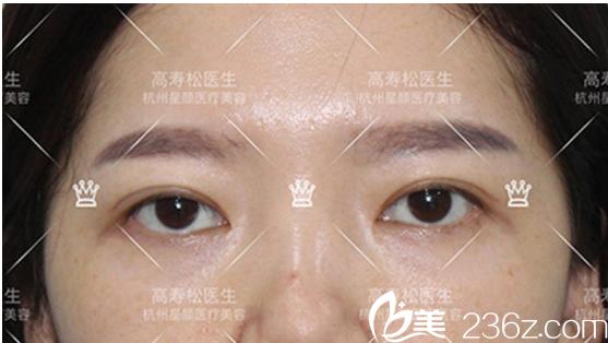 开眼角矫正左右两侧眼角不对称案例