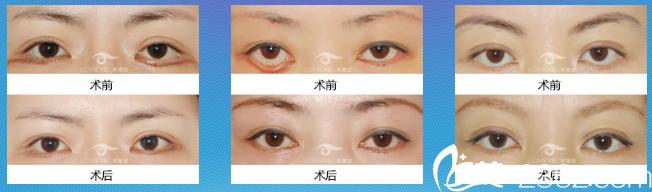 北京来美安王振军双眼皮失败修复组图
