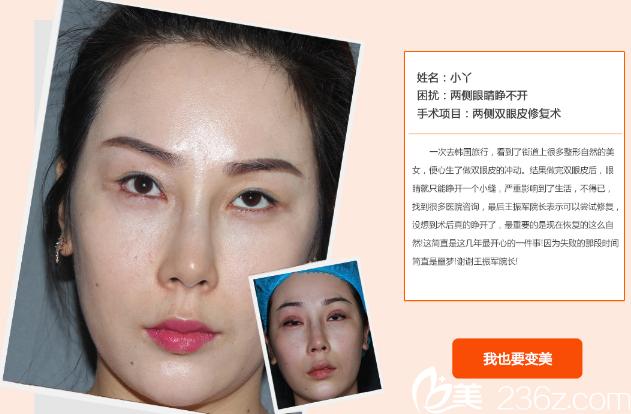 北京来美安王振军两次双眼皮修复案例