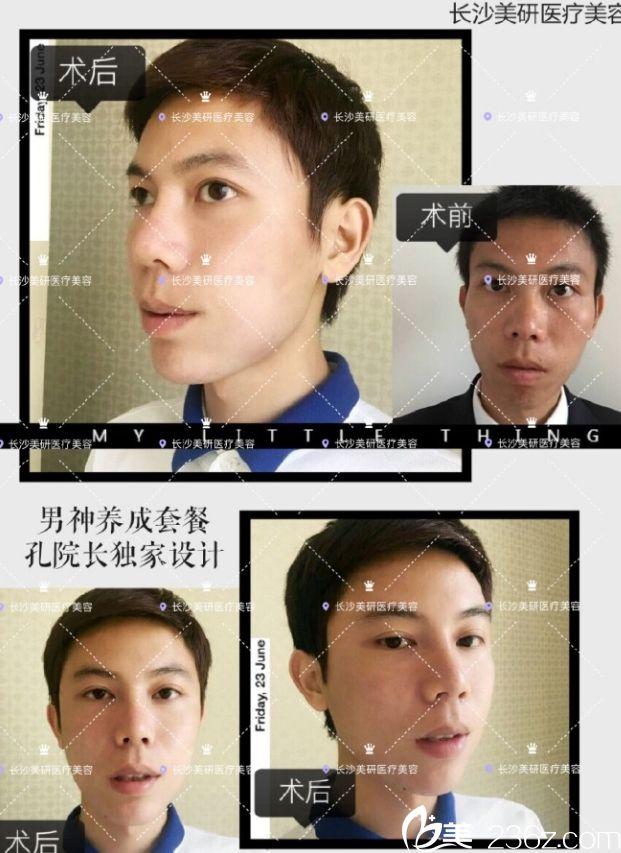长沙美研医疗美容医院孔伟立打造的鼻综合+双眼皮真人案例
