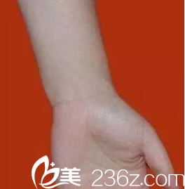 激光祛疤案例 :阳煤集团总医院烧伤科让我告别20年烧伤疤痕